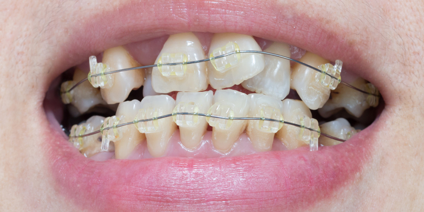 Does Crooked Teeth Make You Unsuitable For Porcelain Veneers