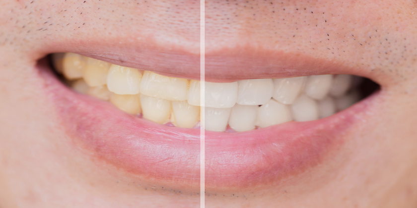 teeth staining
