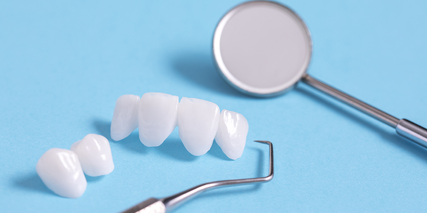 porcelain veneers for a child