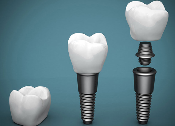 Dental Implants in Midtown NYC