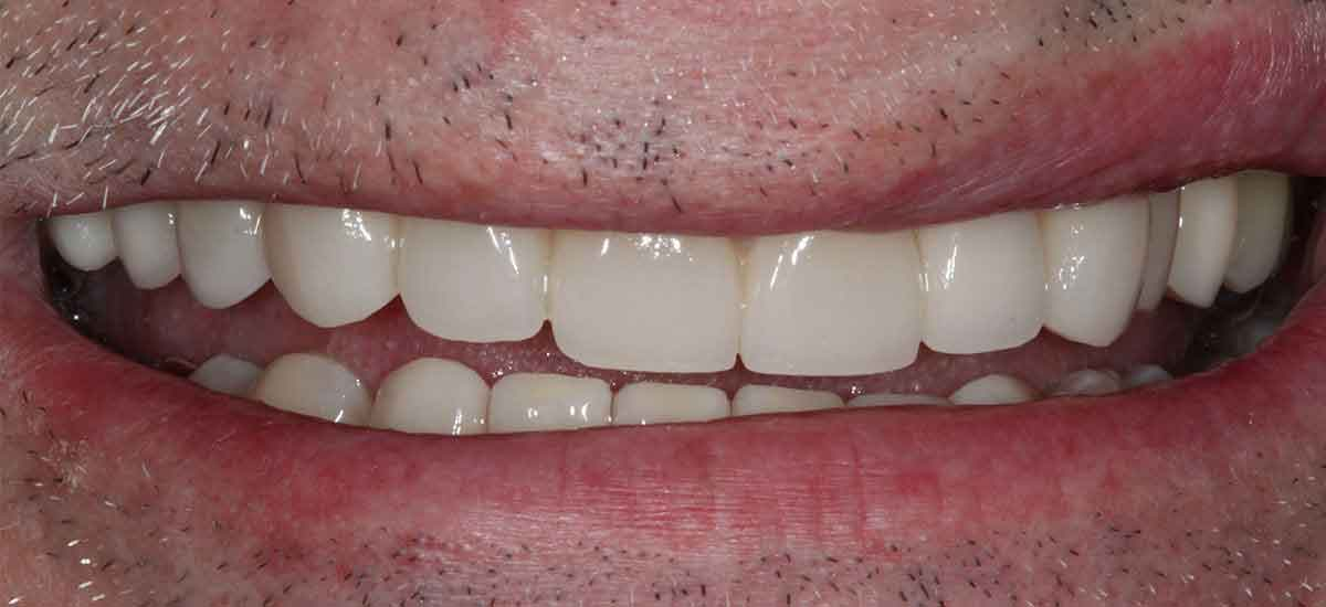 Dental Implants After