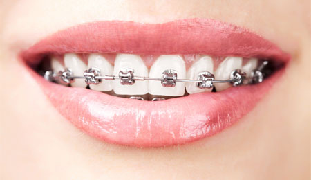 Retainer And Braces Complications