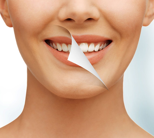 Teeth Whitening in Midtown NYC